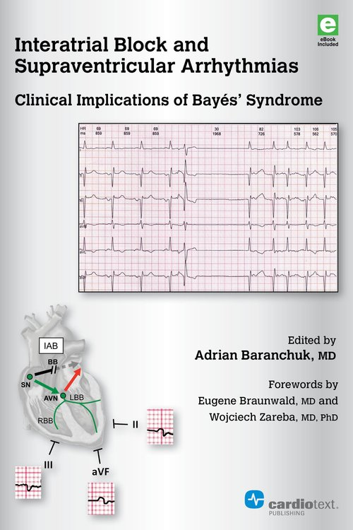 Interatrial Block & Supraventricular Arrhythmias- Clinical Implications of Bayes Syndrome