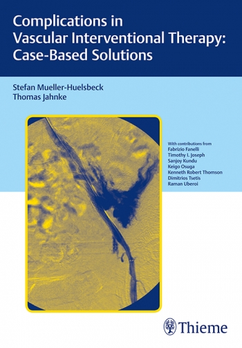 Complications in Vascular Interventional Therapy:Case-Based Solutions