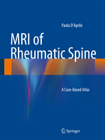 MRI of Rheumatic Spine- A Case-Based Atlas