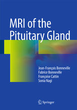MRI of Pituitary Gland