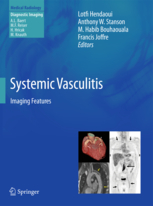 Systemic Vasculitis- Imaging Features