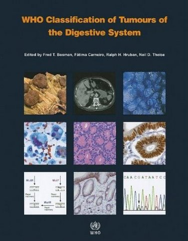WHO Classification of Tumours of the Digestive System,4th ed.(WHO Classification of Tumours, Vol.3)