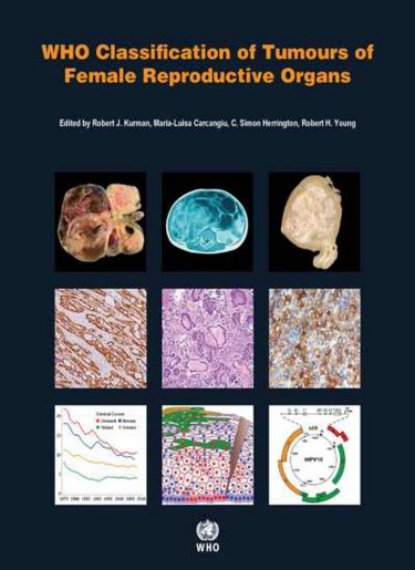 WHO Classification of Tumours of Female ReproductiveOrgans, 4th ed.(WHO Classification of Tumours, Vol.6)