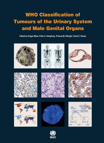 WHO Classification of Tumours of Urinary System & MaleGenital Organs, 4th ed.(WHO Classification of Tumours, Vol.8)