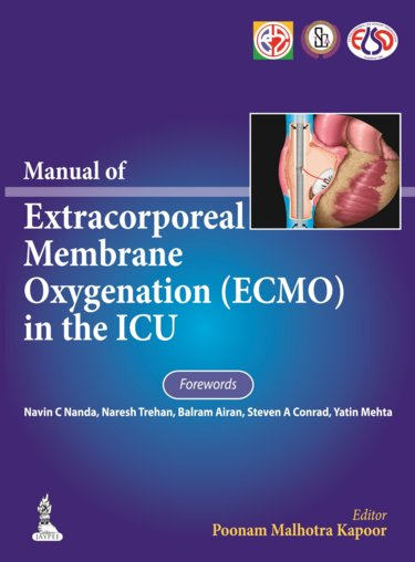 Manual of Extracorporeal Membrane Oxygenation(ECMO)In the ICU