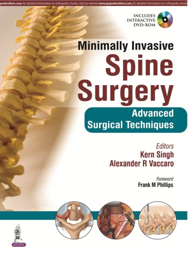 Minimally Invasive Spine Surgery- Advanced Surgical Techniques
