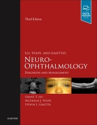 Liu, Volpe & Galetta's Neuro-Ophthalmology, 3rd ed.- Diagnosis & Management