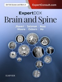 Expert Differential Diagnoses: Brain & Spine, 2nd ed.