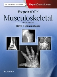 Expert Differential Diagnoses: Musculoskeletal, 2nd ed.