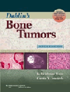 Dahlin's Bone Tumors, 6th ed.- General Aspects & Data on 10,165 Cases