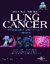 Principles & Practice of Lung Cancer, 4th ed.- Official Reference Text of IASLC