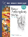 Knee Arthroplasty, 3rd ed.(Master Techniques in Orthopaedic Surgery Series)