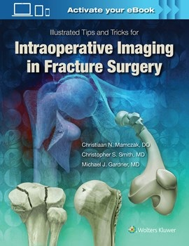 Illustrated Tips & Tricks for Intraoperative Imaging inFracture Surgery