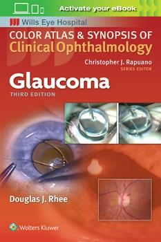 Color Atlas & Synopsis of Clinical Ophthalmology- Glaucoma, 3rd ed.