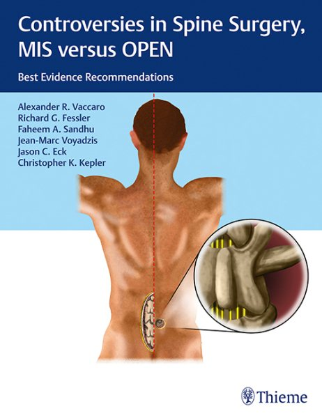 Controversies in Spine Surgery: Mis Versus Open- Best Evidence Recommendations