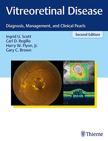 Vitreoretinal Disease, 2nd ed.- Diagnosis, Management & Clinical Pearls