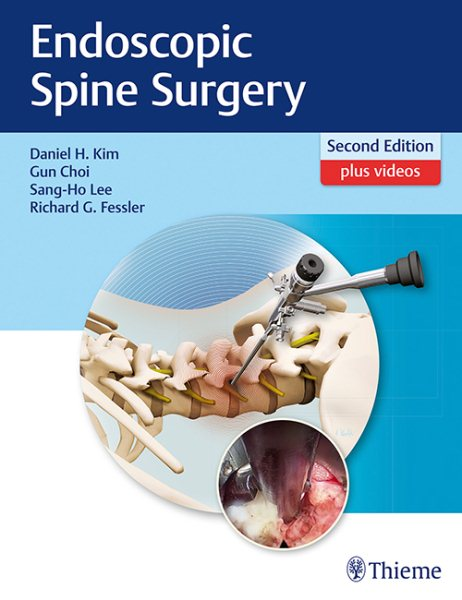 Endoscopic Spine Surgery, 2nd ed.