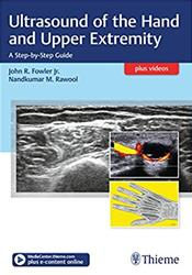 Ultrasound of the Hand & Upper Extremity- A Step-By-Step Guide