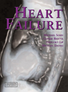 Colour Handbook: Heart Failure, Hardcover- Investigation, Diagnosis, Treatment