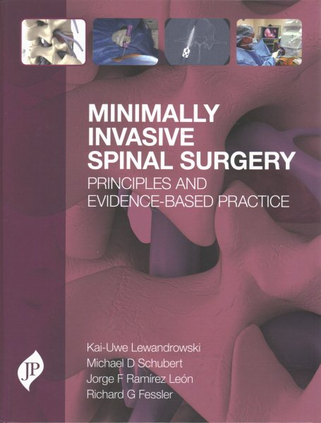 Minimally Invasive Spine Surgery- Principles & Evidence-Based Practice