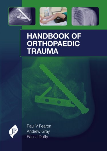 Handbook of Orthopaedic Trauma- Surgical Management from Admission to Rehabilitation