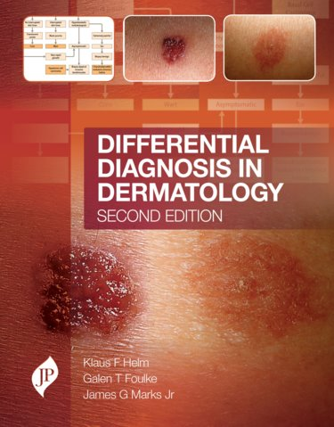 Differential Diagnosis in Dermatology, 2nd ed.