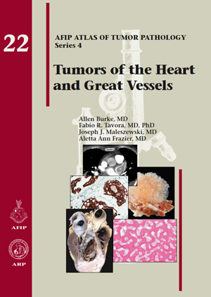 Atlas of Tumor Pathology, 4th Series, Fascicle 22- Tumors of the Heart & Great Vessels
