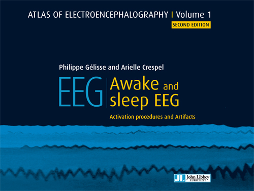 Atlas of Electroencephalography, Vol.1, 2nd ed.- Awake & Sleep EEG: Activation Procedures &