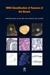 WHO Classification of Tumours of the Breast, 4th ed.(WHO Classification of Tumours, Vol.4)